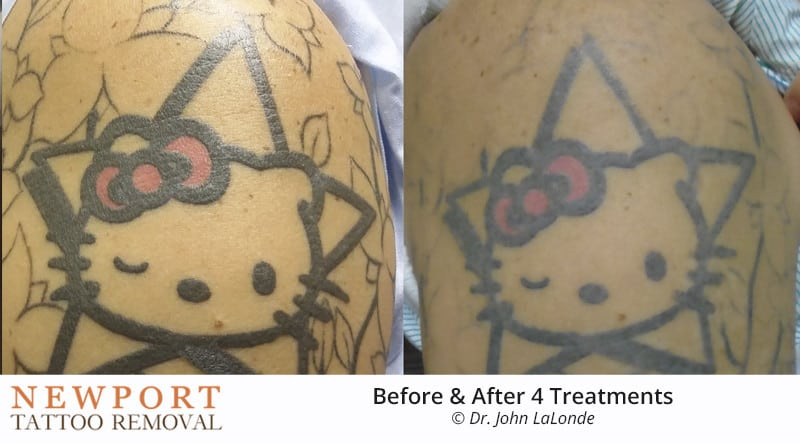 Before After Tattoo Removal Results | Newport Tattoo Removal