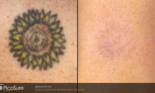 Newport Tattoo Removal Before After Gallery