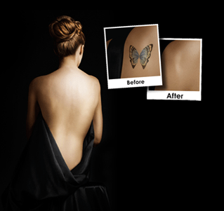 Newport Tattoo Removal PicoSure Before and After