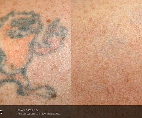 Newport Tattoo Removal - Tattoo Removal Before After