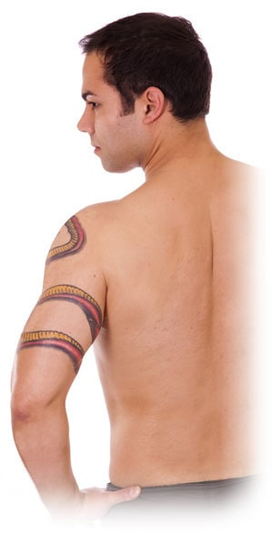 Newport Tattoo Removal - Tattoo Removal