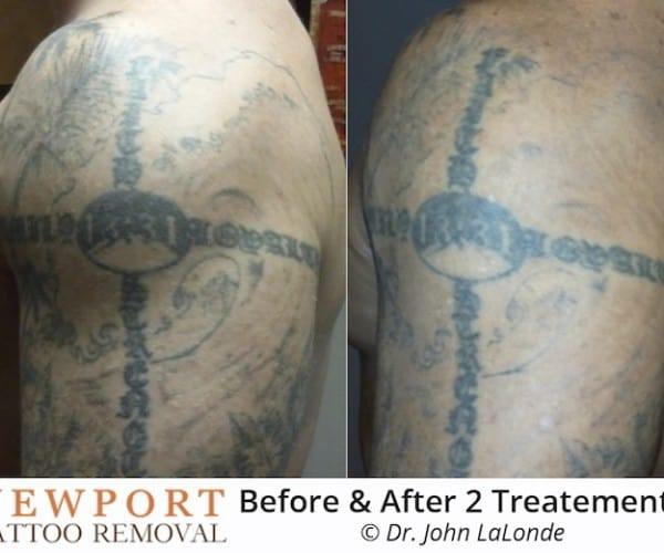 Newport Tattoo Removal - Tattoo Removal Before After 4 Treatments