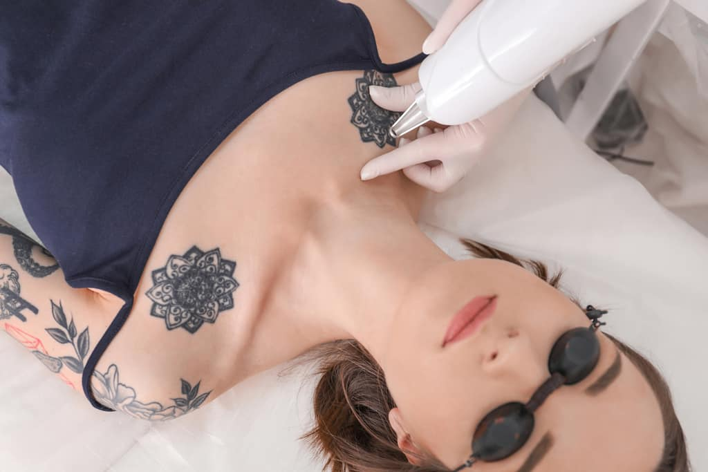 Top 10 Reasons To Consider Tattoo Removal