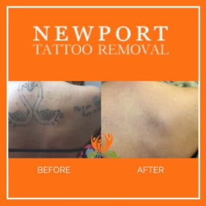 Newport Tattoo Removal | Best methods to remove tattoos