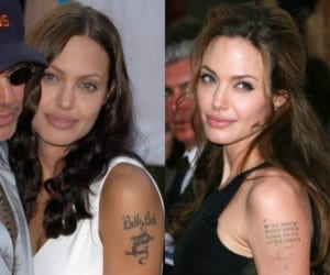 Angelina Jolie Tattoo Removal of Billy Bob Thornton | Newport Tattoo Removal