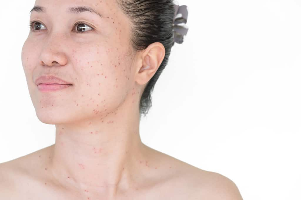 Dark Spots on the Skin: What They Are and How To Get Rid of Them