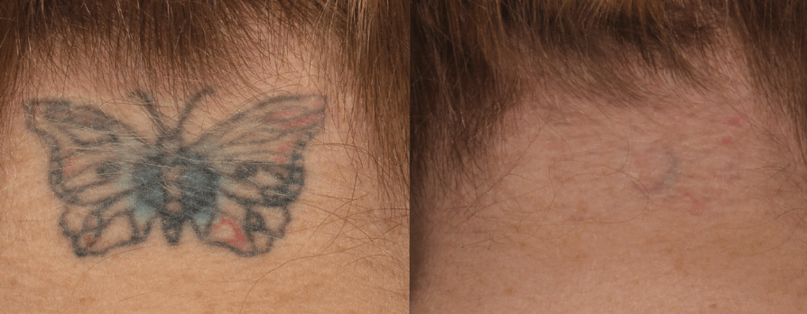 Ways To Make Your Tattoos Appear Less Visible