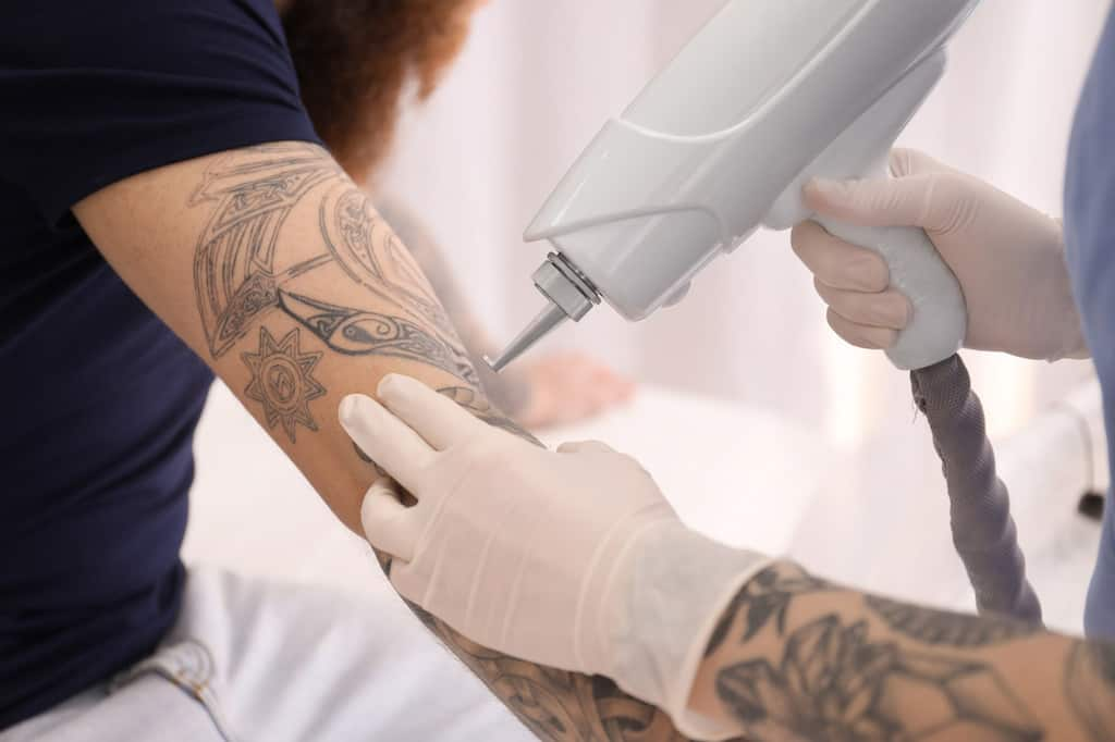 Top Misconceptions About Tattoo Removal | Newport Tattoo Removal