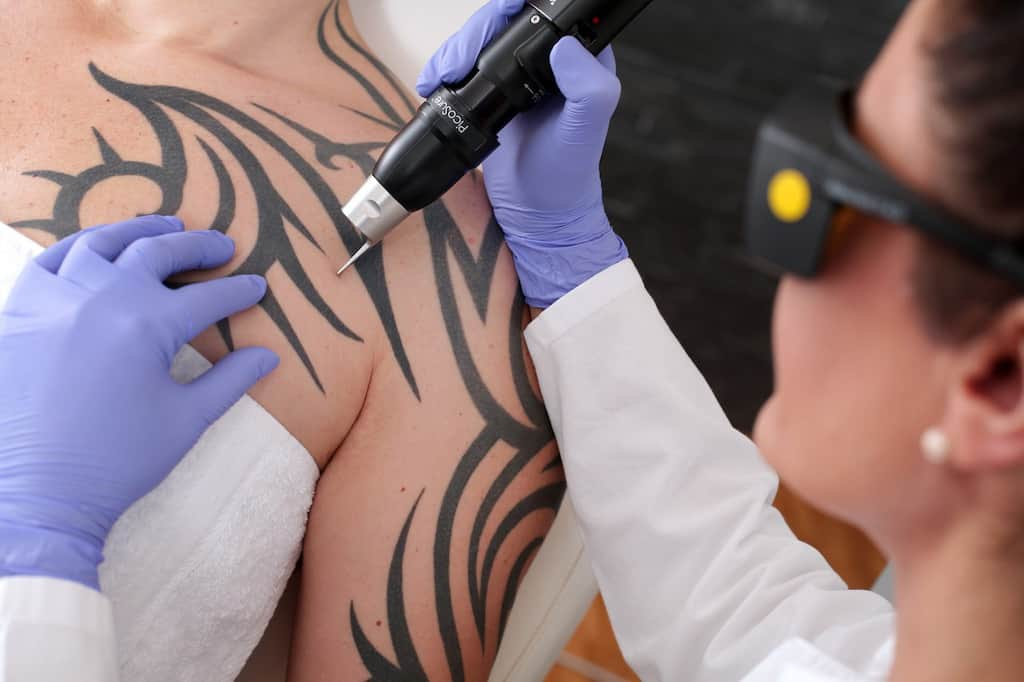 What to Expect When You Get Laser Tattoo Removal | Newport Tattoo Removal