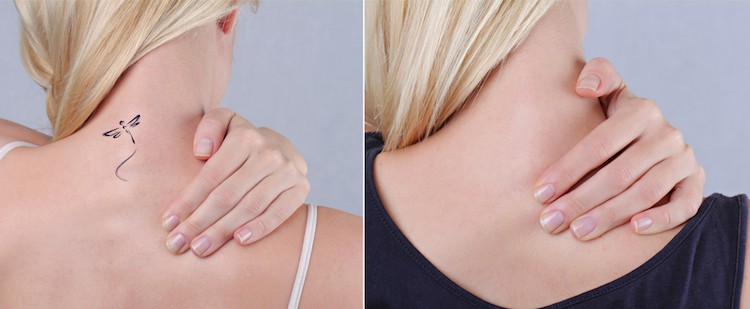 Caring for Your Skin After a Tattoo Removal   Newport Tattoo Removal