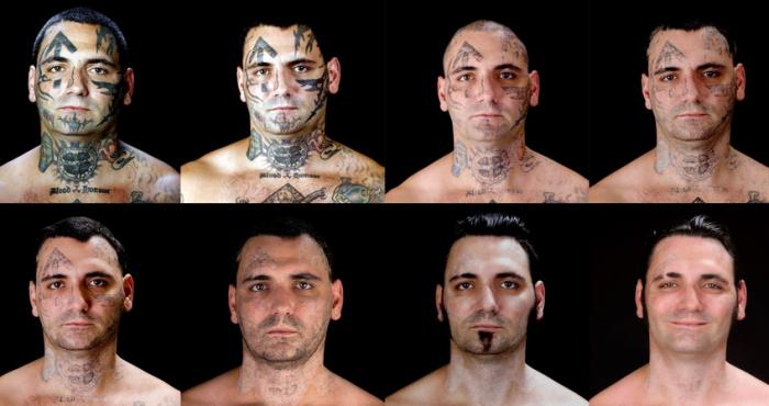 Gang Tattoo Removal | Newport Tattoo Removal