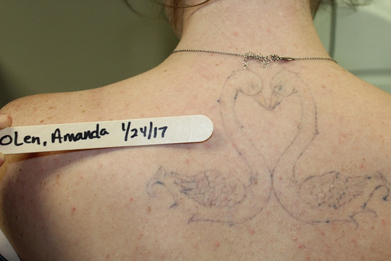 6 Myths People Get Wrong About Tattoo Removal | Newport Tattoo Removal