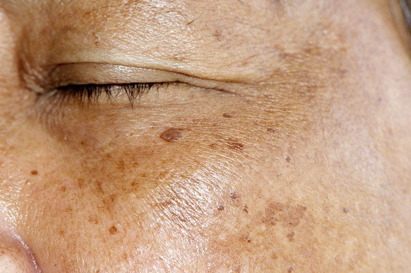 5 Ways to Deal With Dark Spots on Your Skin | Newport Tattoo Removal