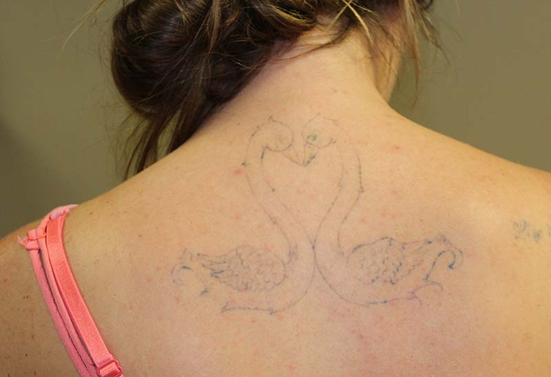 All Your Tattoo Removal Questions Answered | Newport Tattoo Removal